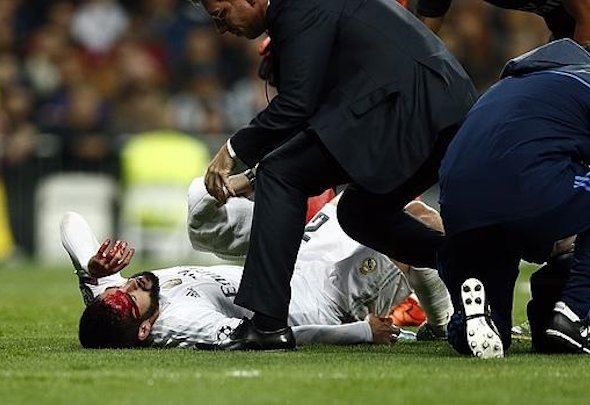 Painful blow: Isco underwent treatment following a clash with Serge Aurier